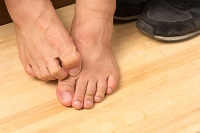 Exposure to Fungus May Cause Athlete's Foot