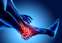Can Relief Be Found From Rheumatoid Arthritis?