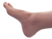 Plantar Hyperhidrosis May Increase the Risk of Other Foot Conditions