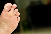 Where on the Feet Does a Plantar Wart Develop?